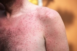 Rash or sun allergy